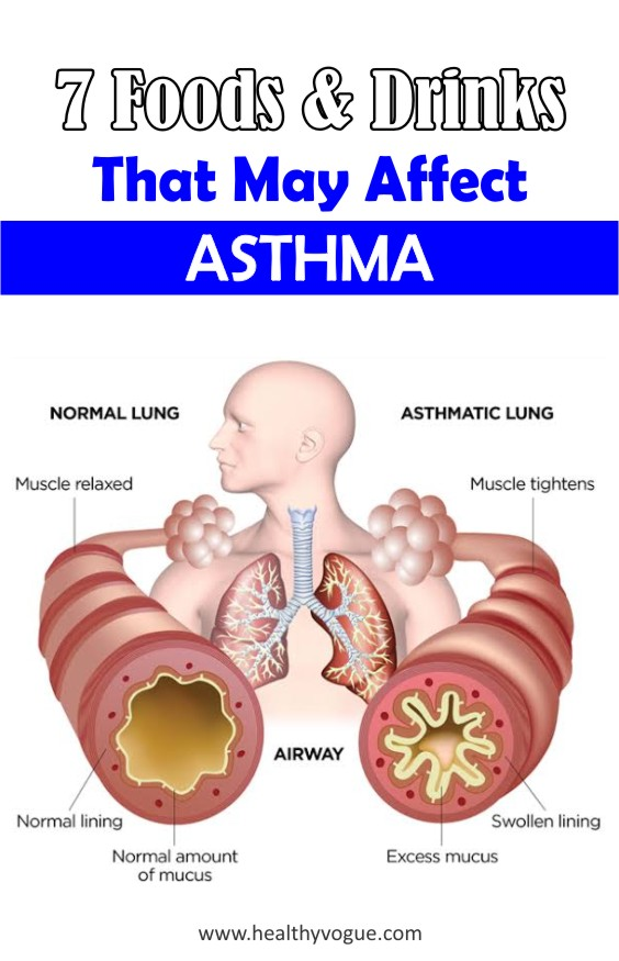 By avoiding these 7 foods and drinks could help improve your #asthma management. #asthmarelief