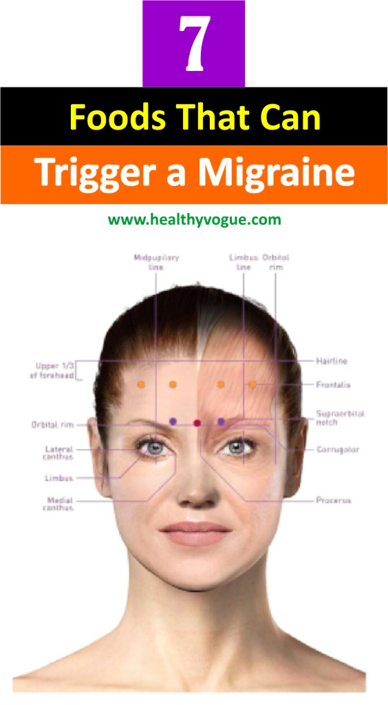 Foods That Can Trigger a Migraine
