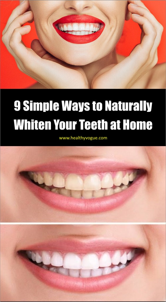 Read on to learn the 9 natural ways to whiten your teeth naturally at home. #teethwhite #homeremedies