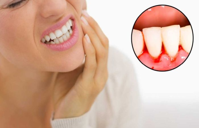 How to Stop Gum Bleeding Immediately