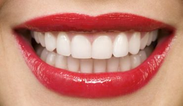Here are 9 best ways to whiten your teeth naturally at home. #teethwhitening #beautytips
