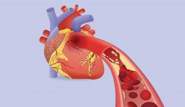 In this article, we are going to introduce you to some bizarrely sneaky factors that increase your risk for heart disease, especially for women. #hearthealth