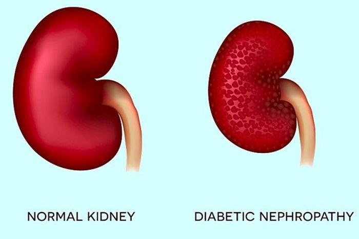How to reverse kidney damage from diabetes